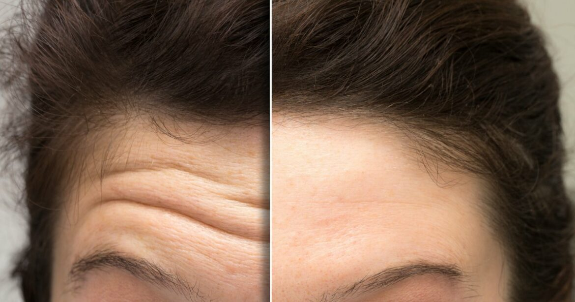 Shoppers Say This New Treatment Is Making Their Forehead Lines 'Disappear'