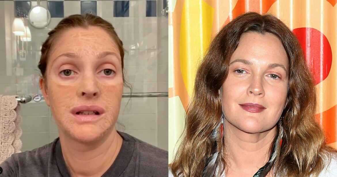 The Skin-Renewing Face Mask That Made Drew Barrymore Unrecognizable