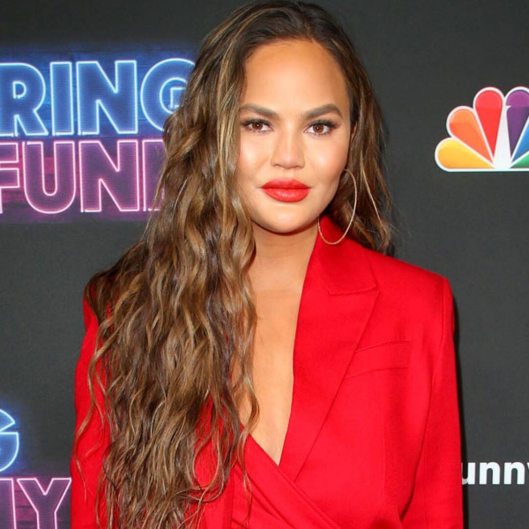 Chrissy Teigen Reveals She Had Fat Removed From Her Cheeks: See the Results
